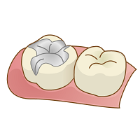 銀歯.png