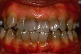 テトラサイクリン歯.png