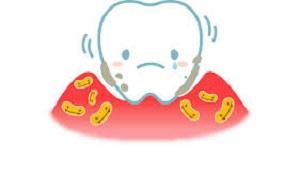 悲しい歯1.jpg