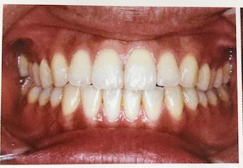 正常歯列.png
