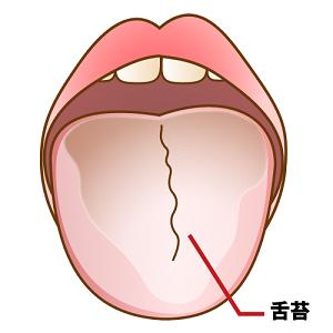 舌苔.png