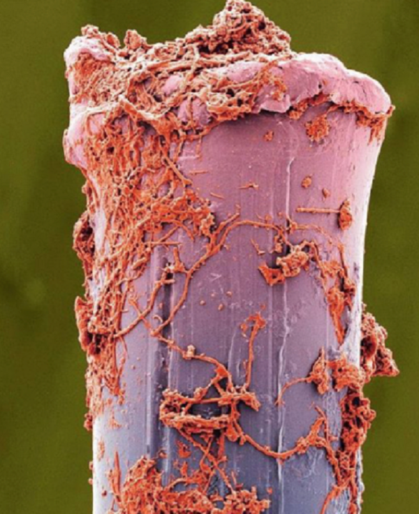 3-1雑菌が繁殖.png